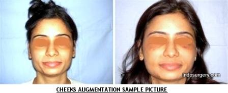 Cheeks Augmentation - Sample Picture