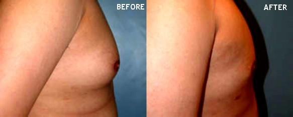 gynecomastia surgery before after. Before amp; After Pictorial View