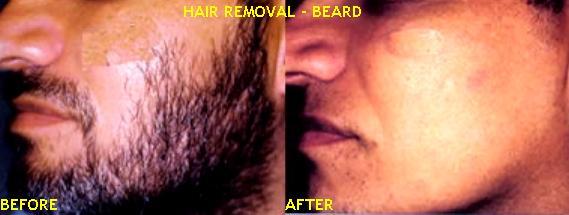 Laser Hair Removal In India Mumbai Bombay Delhi Permanent Hair