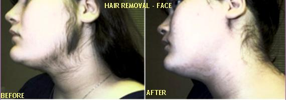 Women permanent facial hair removal