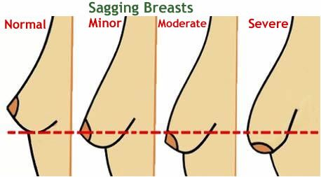 Sagging Breast Correction Surgery - Indosurgery, Mumbai, India